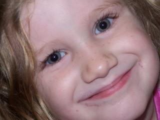 freckles.jpg